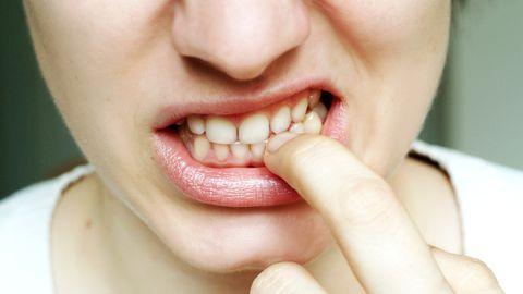 Küünte närimine võib kaasa tuua raskeid ja ebameeldivaid tagajärgi.