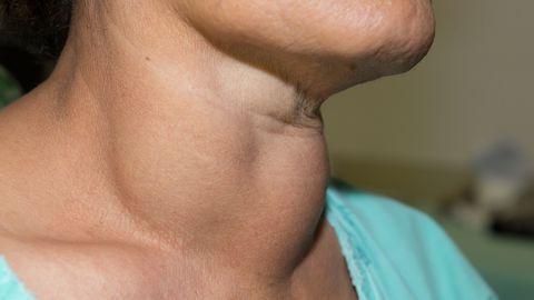 Kilpnäärmepõletik: sümptomid, ennetamine ja ravivõimalused