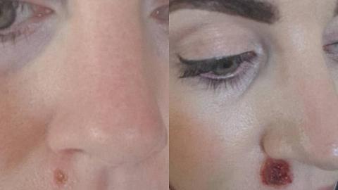 Vasakul on punn, millest vähk alguse sai ning paremal on näha ravi tulemus. Raviks kasutati kreemi, mis paneb keha immuunsüsteemi vähki ründama.
