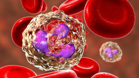 Verevähk võib olla hiiliv ja pideva suure väsimuse puhul võiks minna tervist kontrollima.