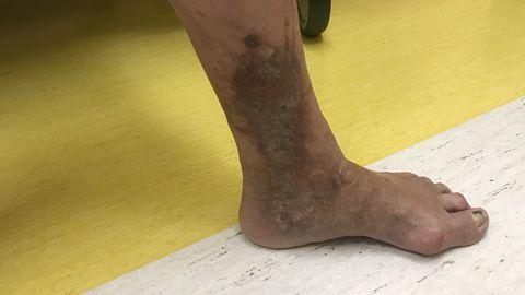 Veenilaienditest põhjustatud nahamuutus.