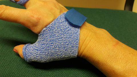 Individuaalselt valmistatud lahas pöidlale ja sõrmele.