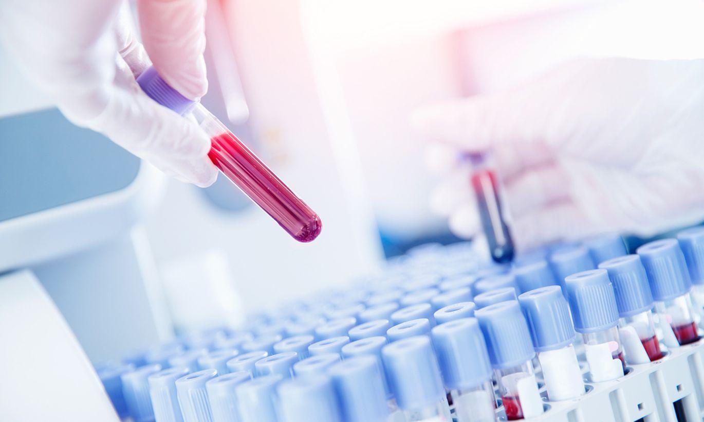 Теперь в Эстонии можно сдать тест на антитела, чтобы понять, переболели ли вы COVID-19