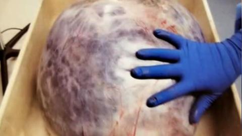 Kasvaja lükkas organid valedesse kohtadesse ja takistas vere jõudmist ajusse.