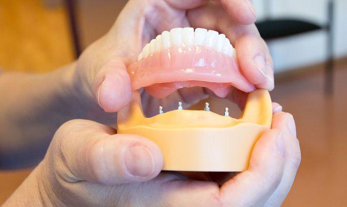 зубные протезы нового поколения виниры