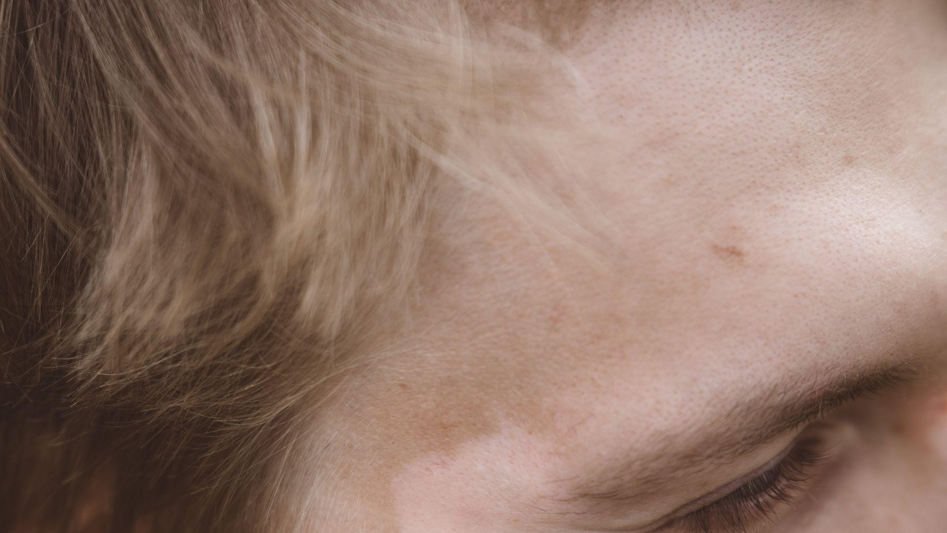"""Kitijas Jurcikas """"Vitiligo"""" fotoprojekts - modelis Emīls"""