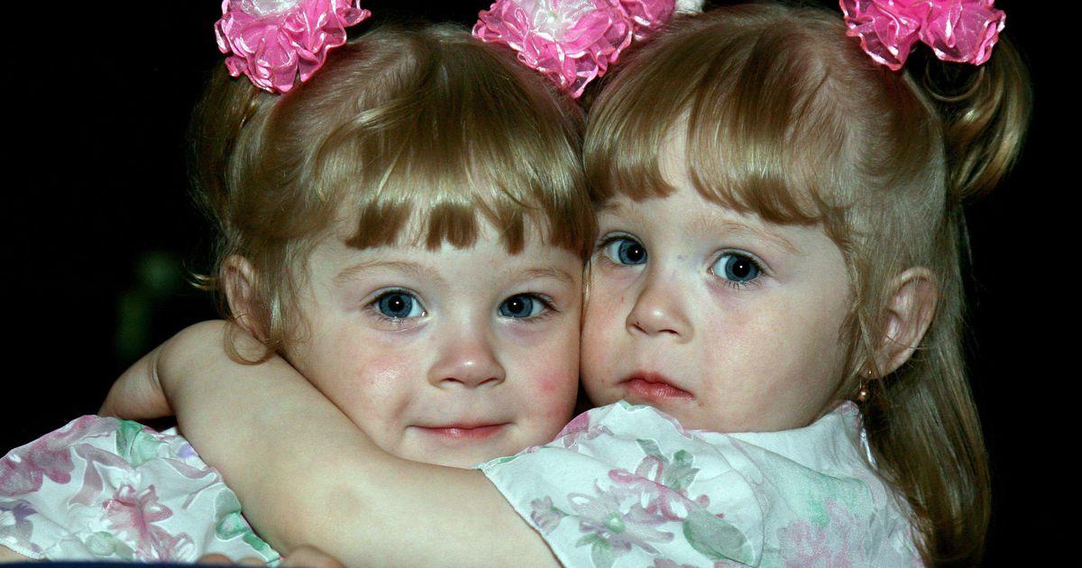 Пара близняшек на фото, самый необычный пизды мира фото