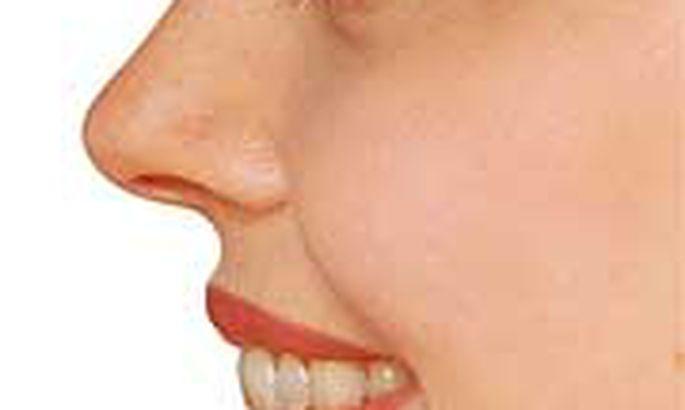 Как меняется лицо при похудении: фото до и после   полезно о красоте.